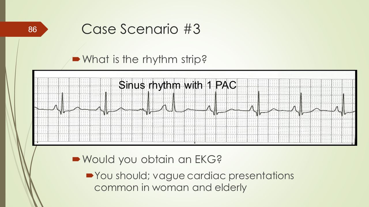 Case Scenario #3 What is the rhythm strip Sinus rhythm with 1 PAC