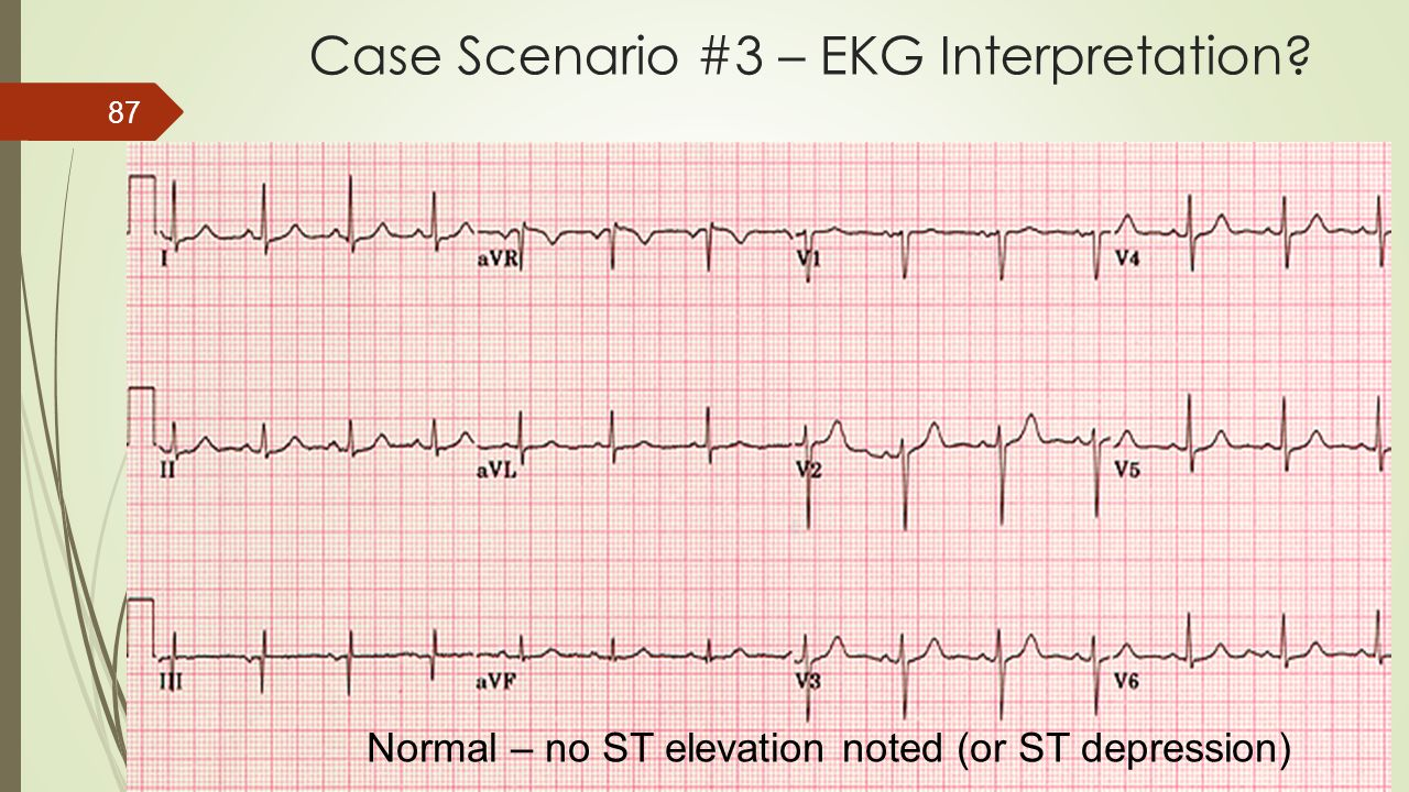 Case Scenario #3 – EKG Interpretation