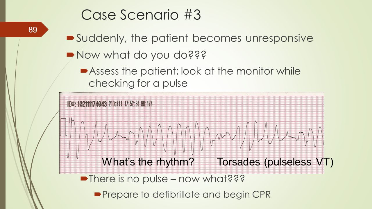 Case Scenario #3 Suddenly, the patient becomes unresponsive