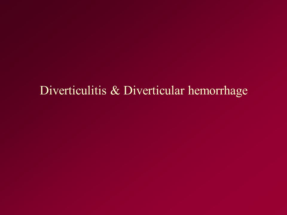 Diverticulitis & Diverticular hemorrhage