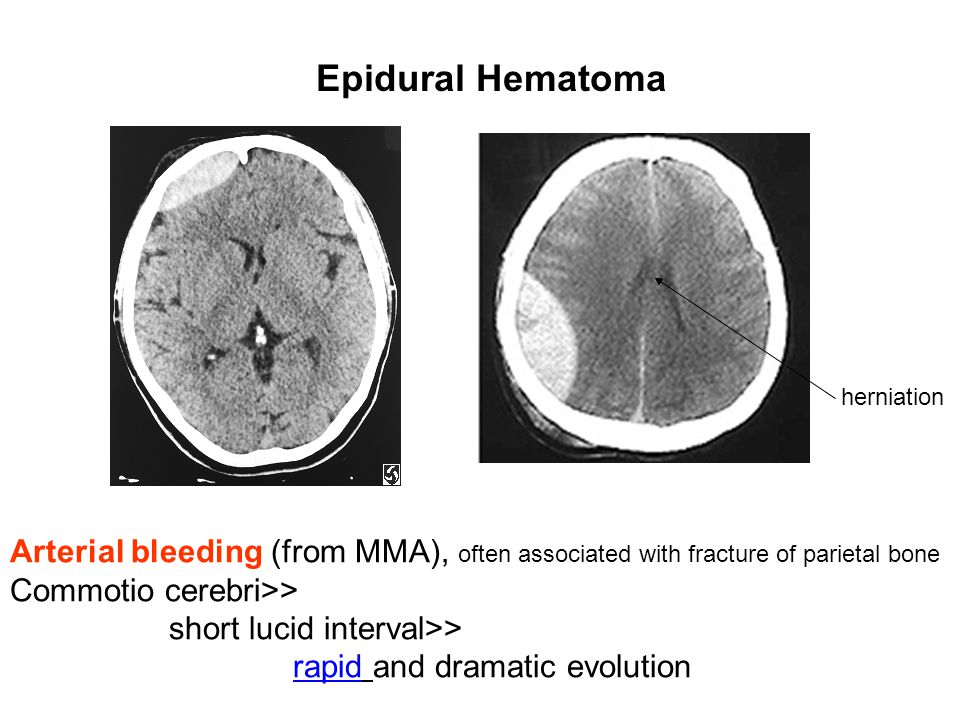 Epidural Hematoma herniation. Arterial bleeding (from MMA), often associated with fracture of parietal bone.