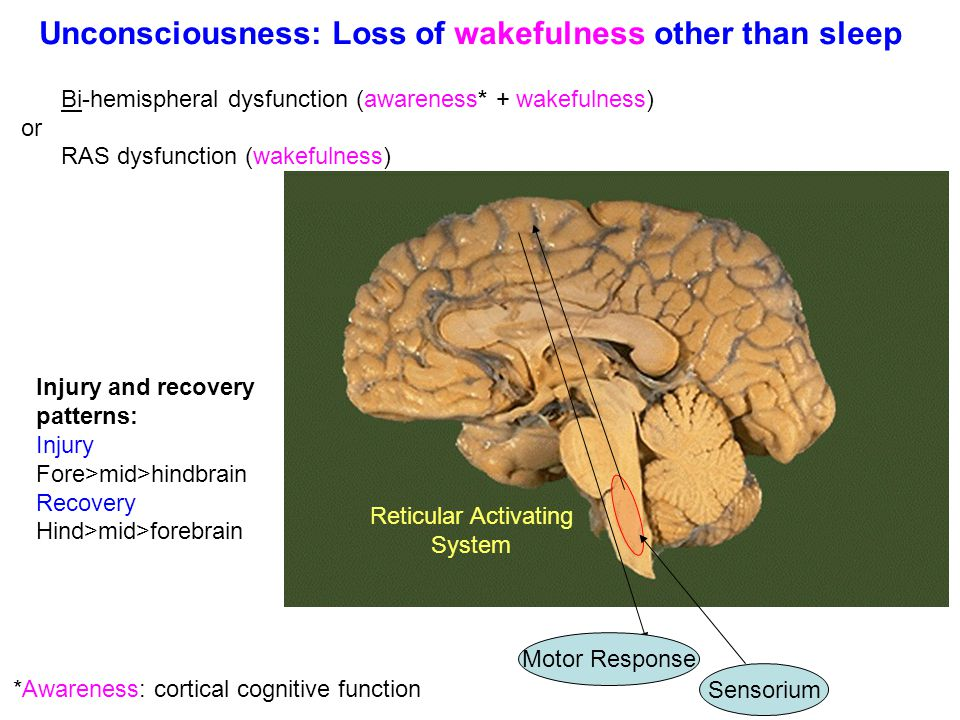 Unconsciousness: Loss of wakefulness other than sleep