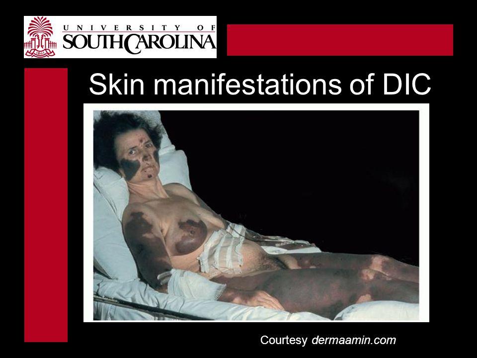 Skin manifestations of DIC
