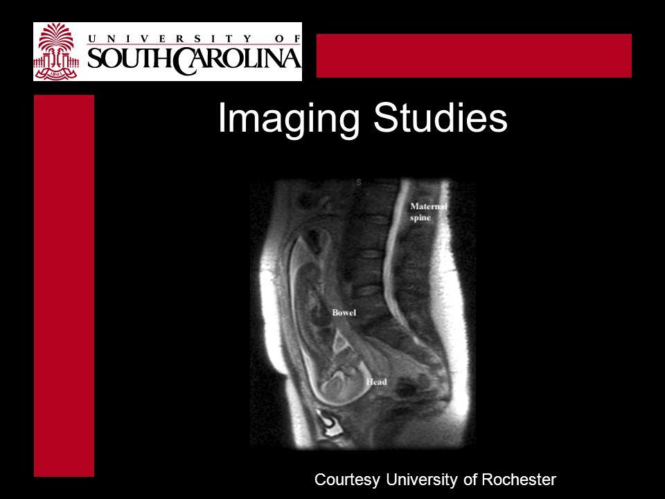 Courtesy University of Rochester