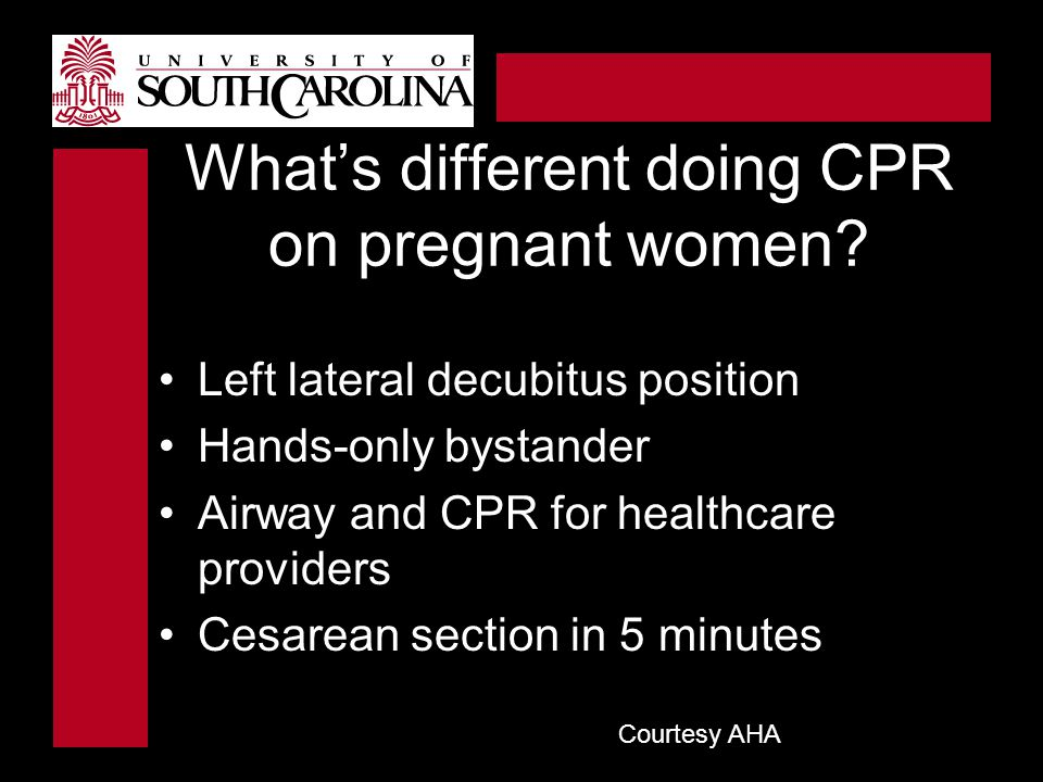 What's different doing CPR on pregnant women