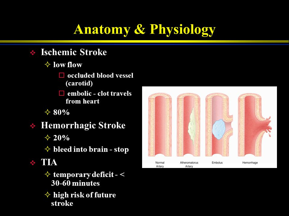 Anatomy & Physiology Ischemic Stroke Hemorrhagic Stroke TIA low flow