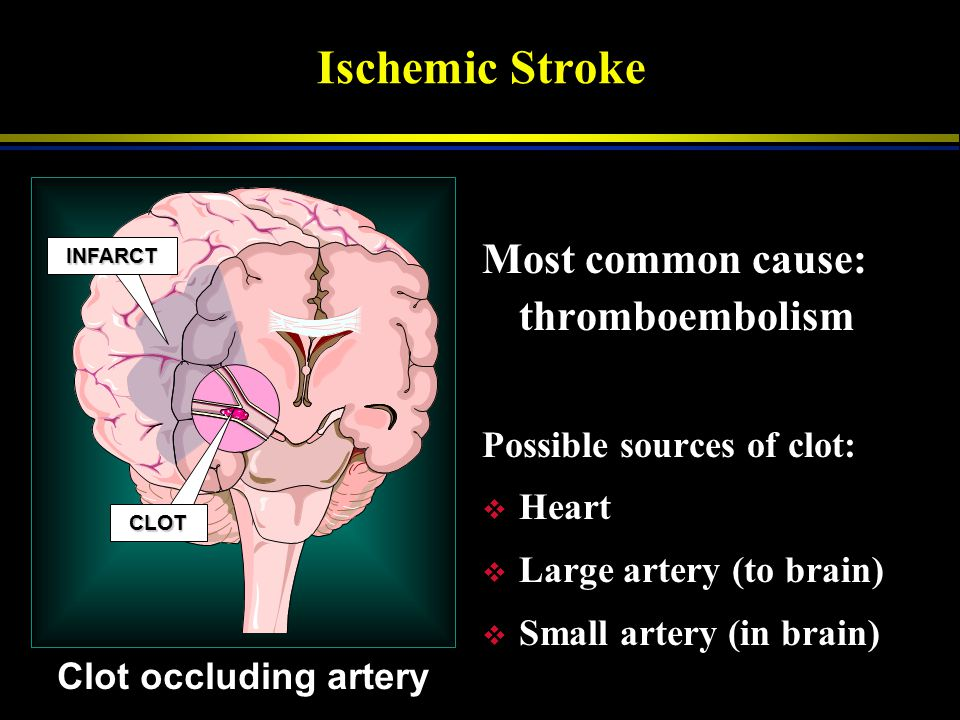 Ischemic Stroke Most common cause: thromboembolism
