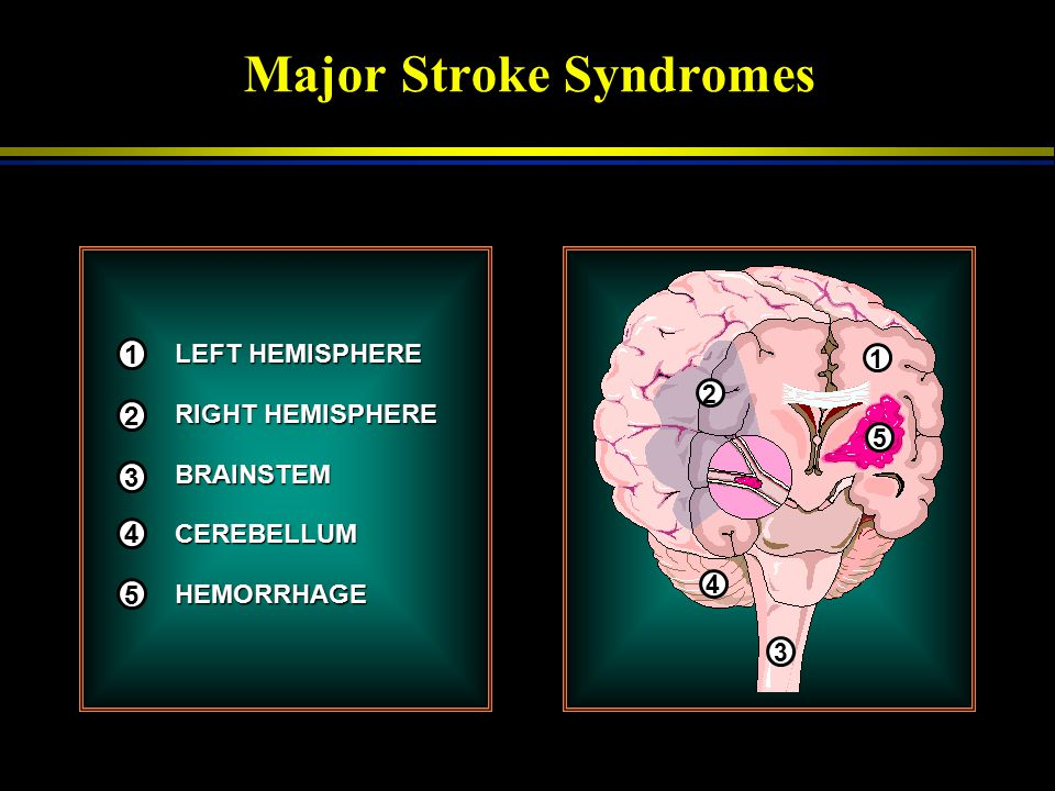 Major Stroke Syndromes