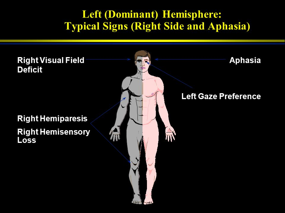 Left (Dominant) Hemisphere: Typical Signs (Right Side and Aphasia)