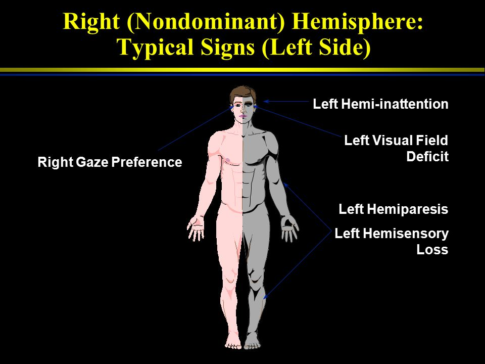 Right (Nondominant) Hemisphere: Typical Signs (Left Side)