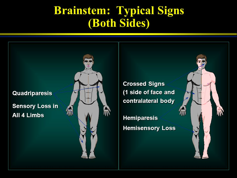 Brainstem: Typical Signs (Both Sides)