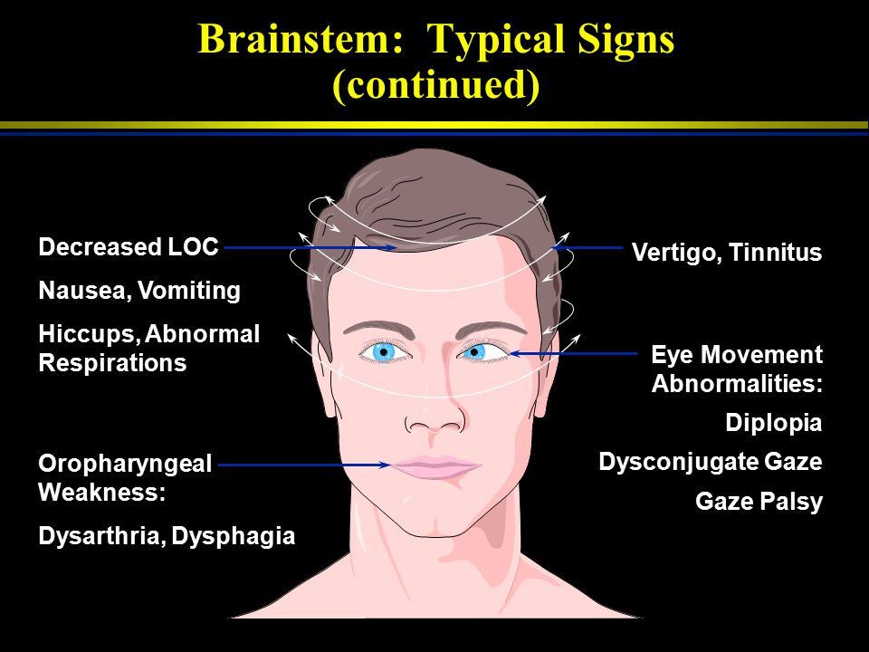 Brainstem: Typical Signs (continued)