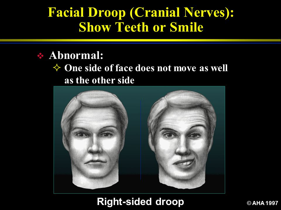 Facial Droop (Cranial Nerves): Show Teeth or Smile