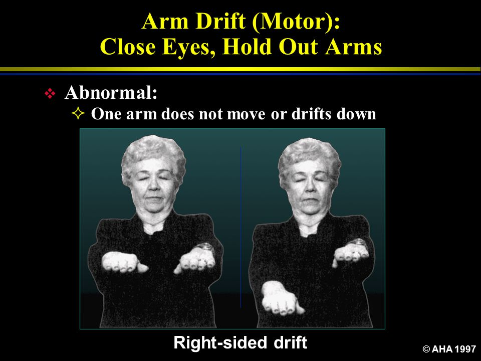 Arm Drift (Motor): Close Eyes, Hold Out Arms
