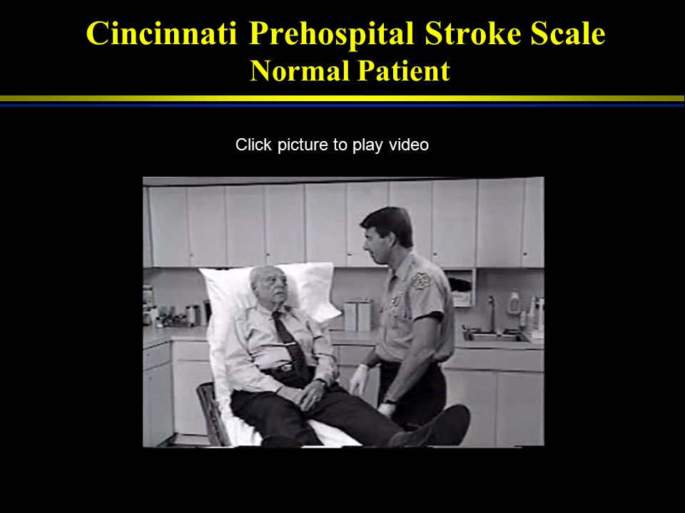 Cincinnati Prehospital Stroke Scale Normal Patient