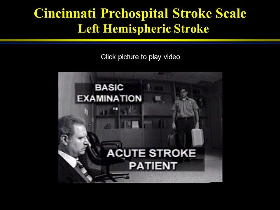 Cincinnati Prehospital Stroke Scale Left Hemispheric Stroke