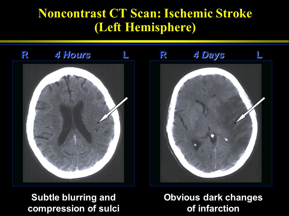 Noncontrast CT Scan: Ischemic Stroke (Left Hemisphere)