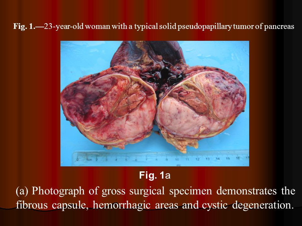 Fig. 1.—23-year-old woman with a typical solid pseudopapillary tumor of pancreas