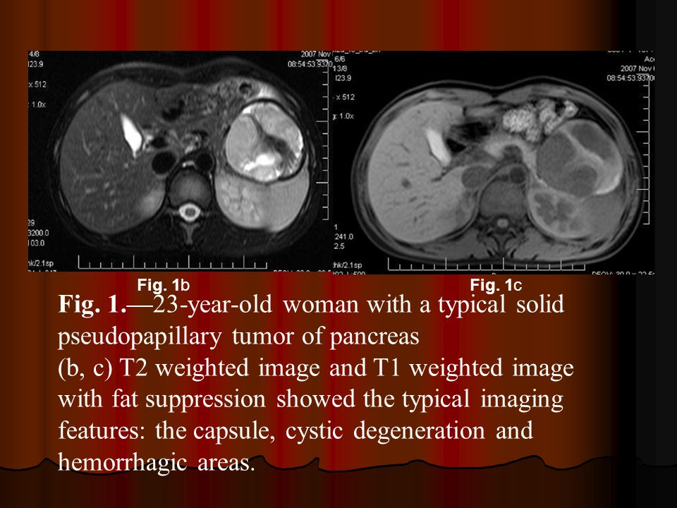 Fig. 1b Fig. 1c. Fig. 1.—23-year-old woman with a typical solid pseudopapillary tumor of pancreas.
