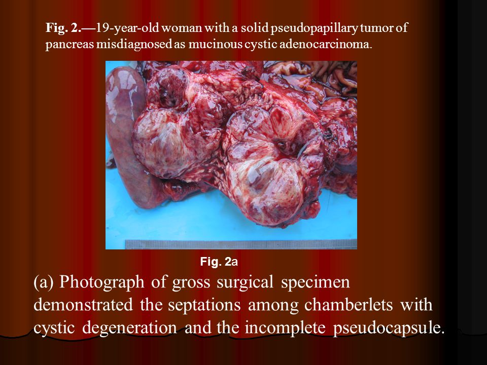 Fig. 2.—19-year-old woman with a solid pseudopapillary tumor of pancreas misdiagnosed as mucinous cystic adenocarcinoma.