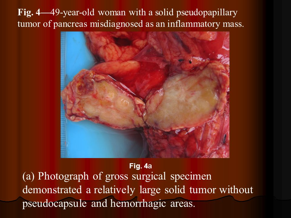 Fig. 4—49-year-old woman with a solid pseudopapillary tumor of pancreas misdiagnosed as an inflammatory mass.