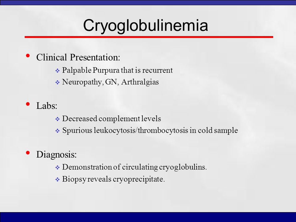 Cryoglobulinemia Clinical Presentation: Labs: Diagnosis: