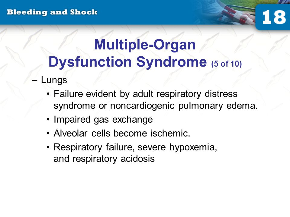 Multiple-Organ Dysfunction Syndrome (6 of 10)