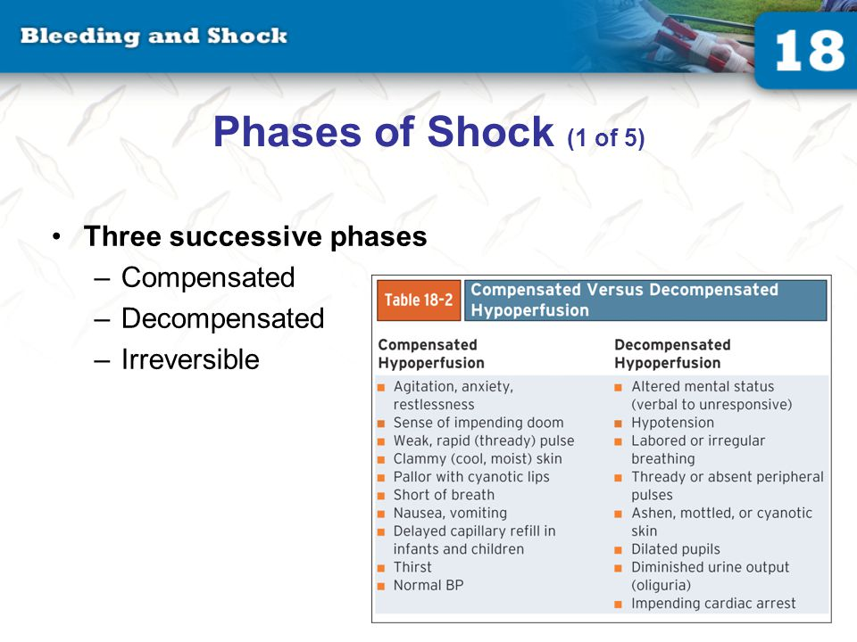 Phases of Shock (2 of 5) Compensated phase of shock Earliest stage