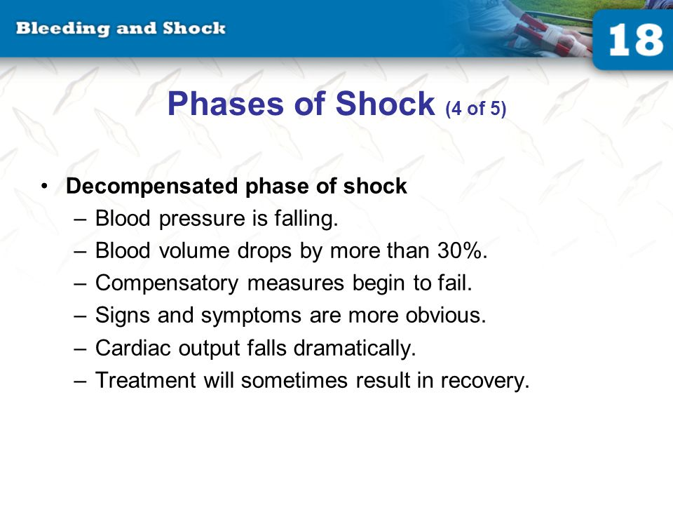 Phases of Shock (5 of 5) Irreversible (terminal) phase of shock