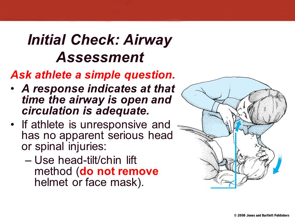 Initial Check: Airway Assessment