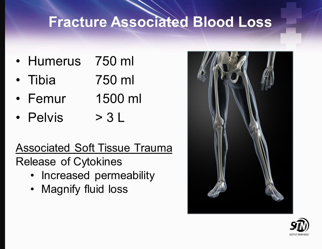 Fracture Associated Blood Loss