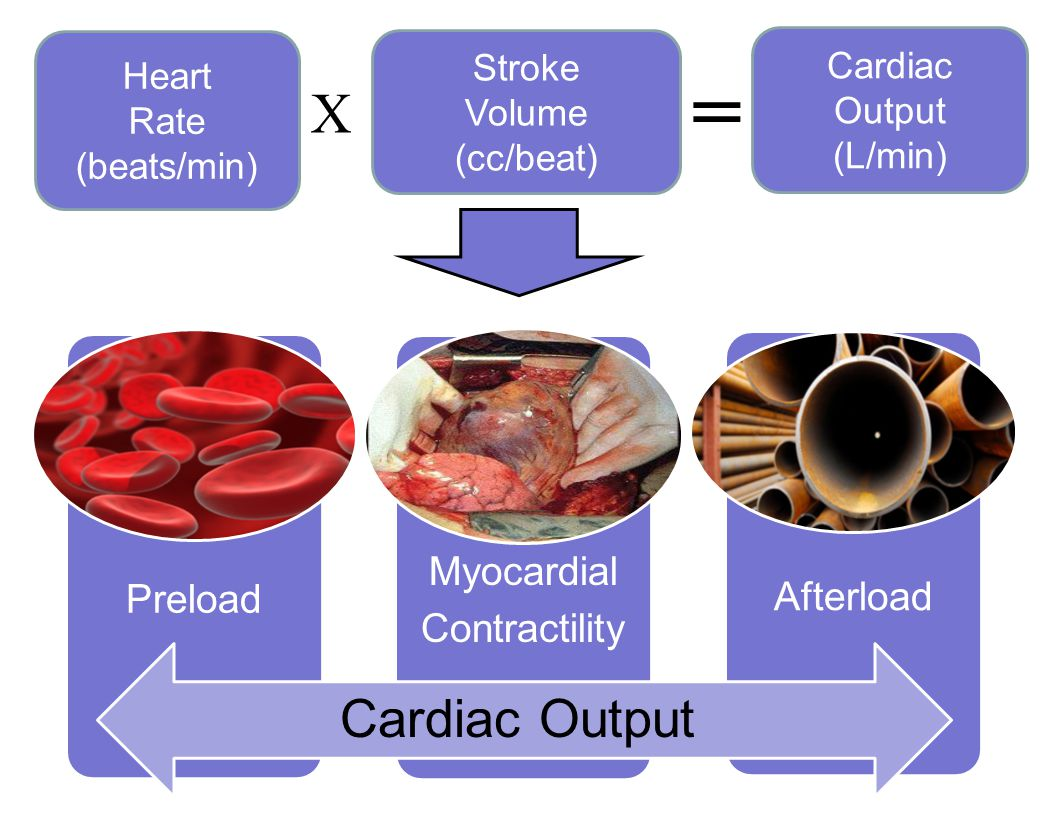 = X Cardiac Output Myocardial Preload Afterload Contractility Stroke