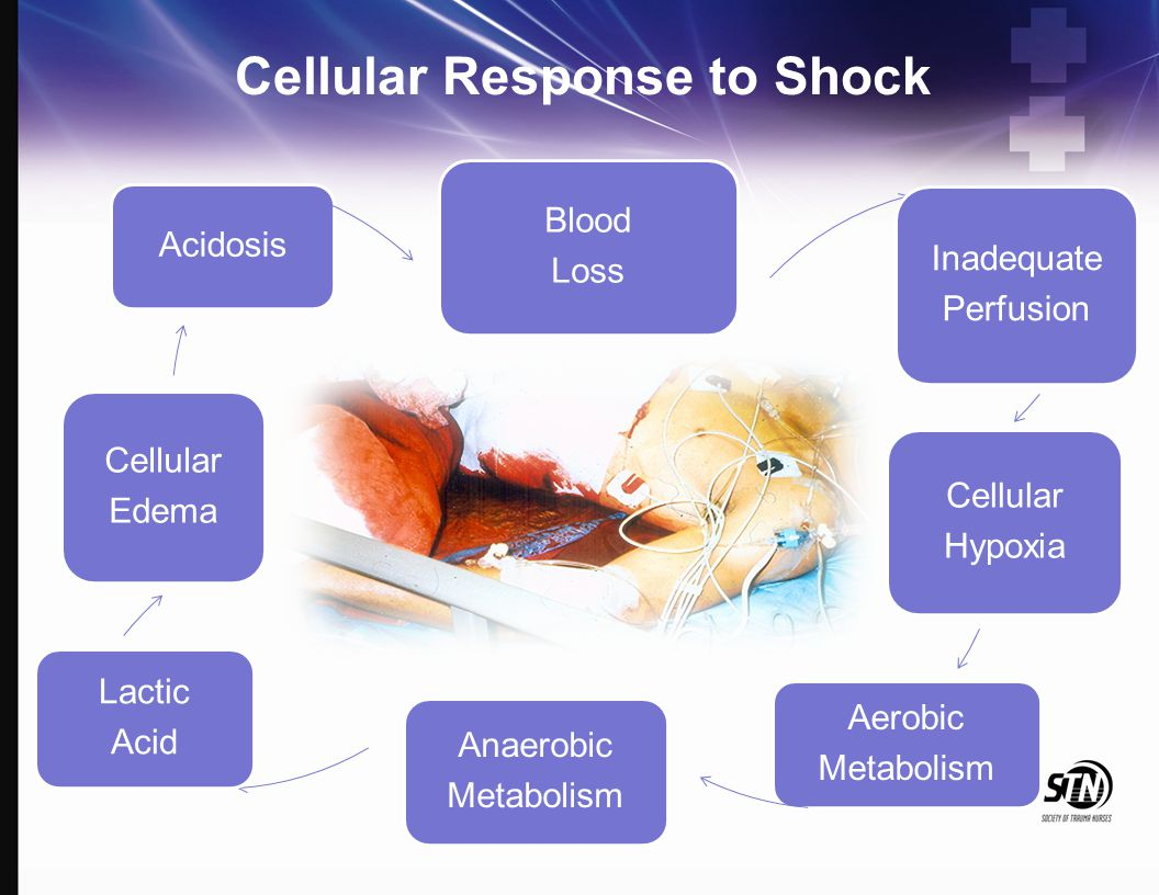Cellular Response to Shock