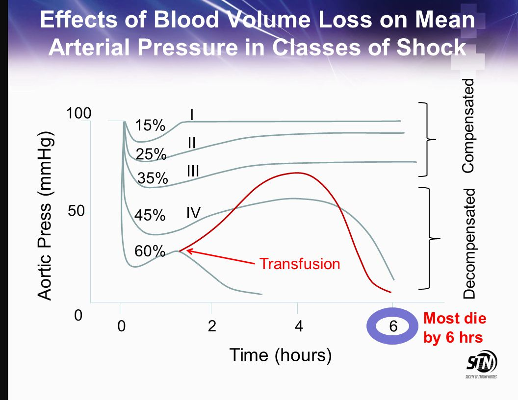 4_Hemorrhagic Shock Effects of Blood Volume Loss on Mean Arterial Pressure in Classes of Shock. 100.