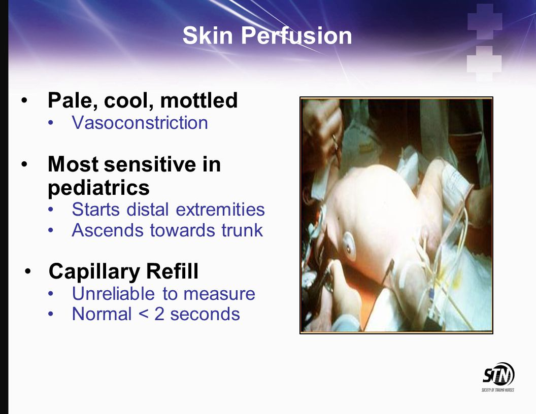 Skin Perfusion Pale, cool, mottled Most sensitive in pediatrics