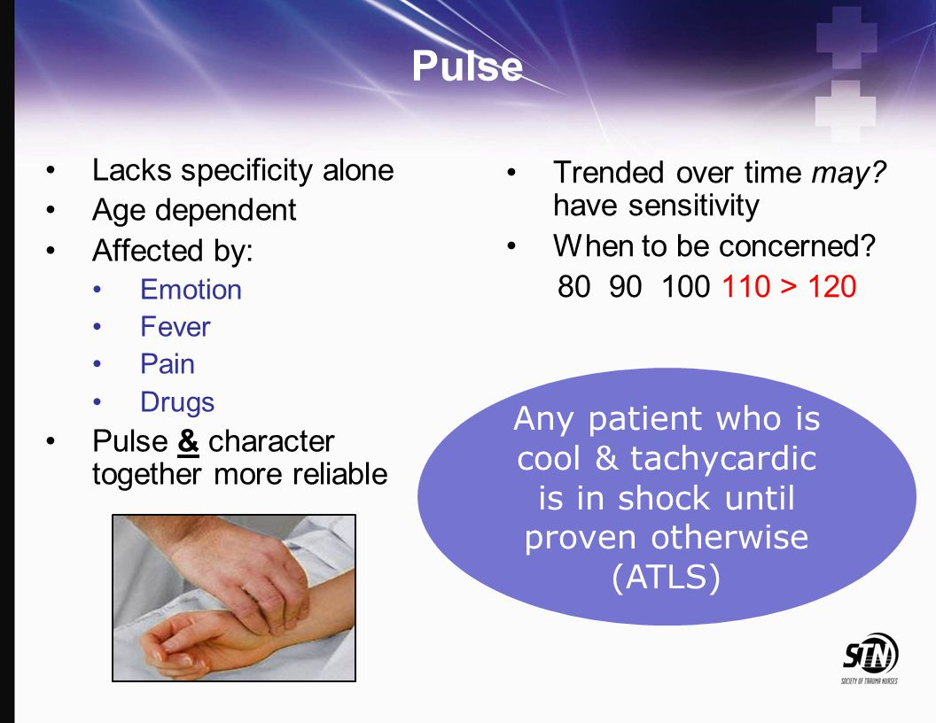 4_Hemorrhagic Shock Pulse. Lacks specificity alone. Age dependent. Affected by: Emotion. Fever.