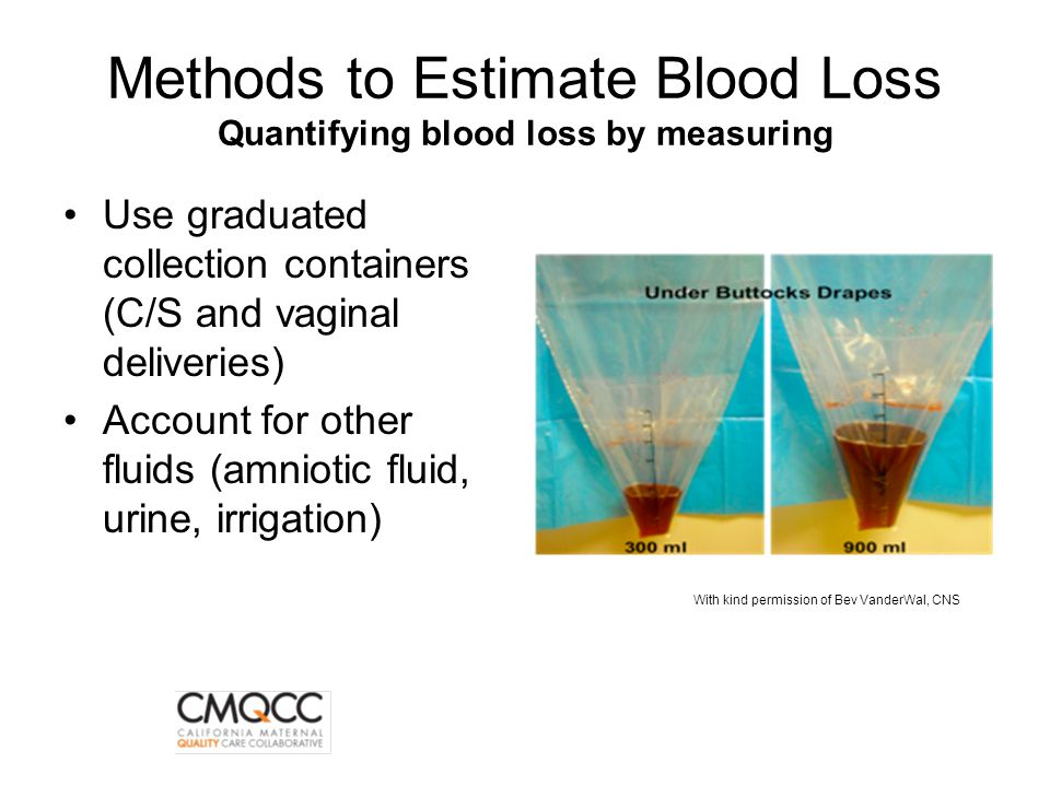 Methods to Estimate Blood Loss Quantifying blood loss by measuring