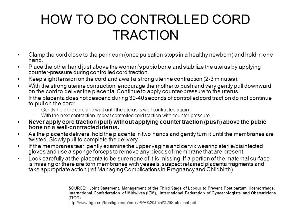 HOW TO DO CONTROLLED CORD TRACTION
