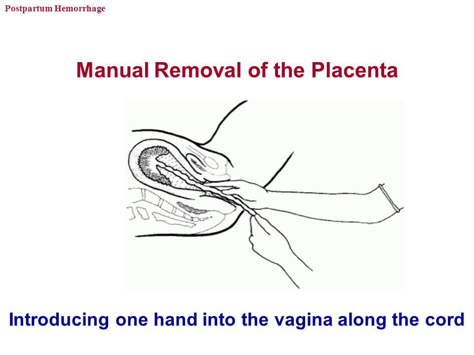 Manual Removal of the Placenta