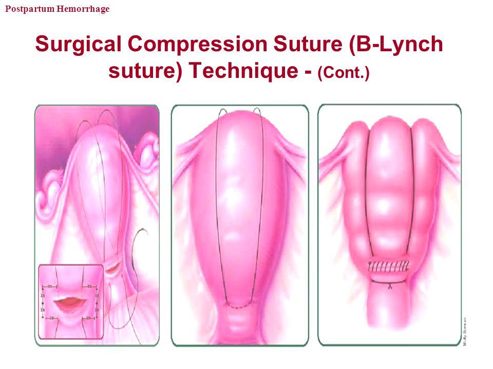 Surgical Compression Suture (B-Lynch suture) Technique - (Cont.)