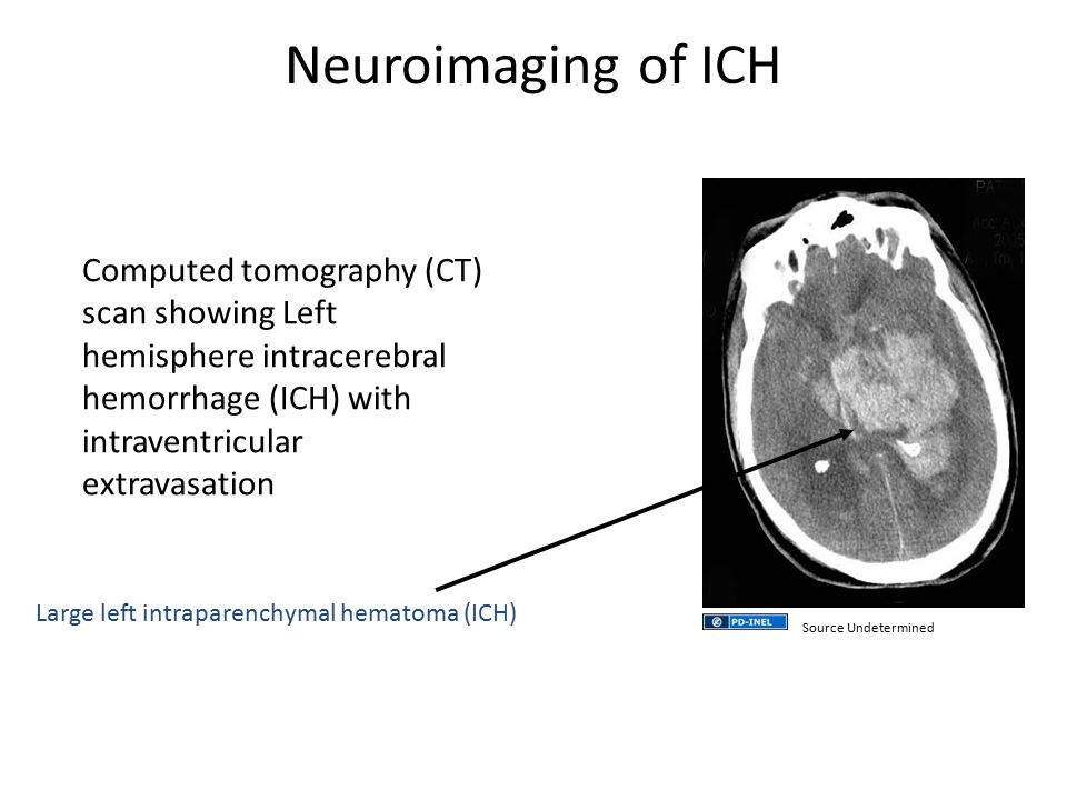 Neuroimaging of ICH Computed tomography (CT) scan showing Left hemisphere intracerebral hemorrhage (ICH) with intraventricular extravasation.
