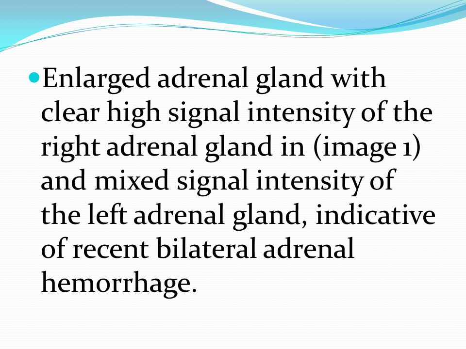 Enlarged adrenal gland with clear high signal intensity of the right adrenal gland in (image 1) and mixed signal intensity of the left adrenal gland, indicative of recent bilateral adrenal hemorrhage.