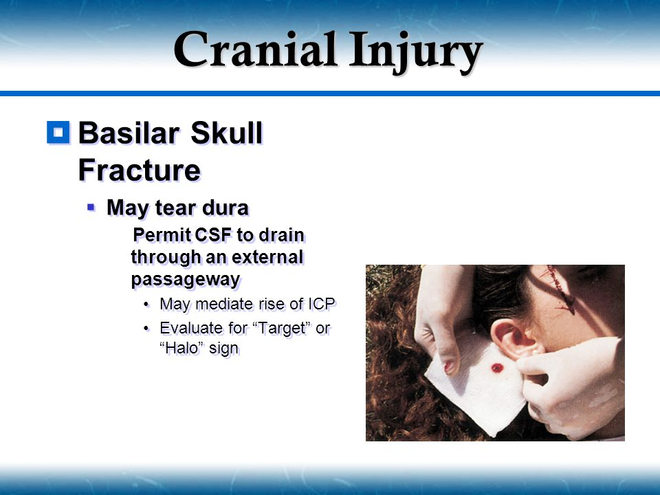 Cranial Injury Basilar Skull Fracture May tear dura