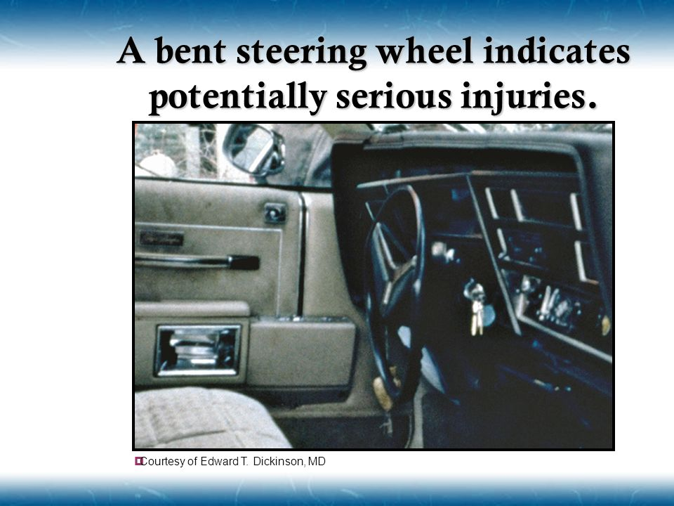 A bent steering wheel indicates potentially serious injuries.