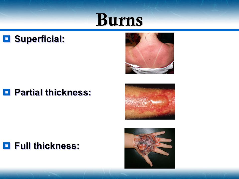 Burns Superficial: Partial thickness: Full thickness: