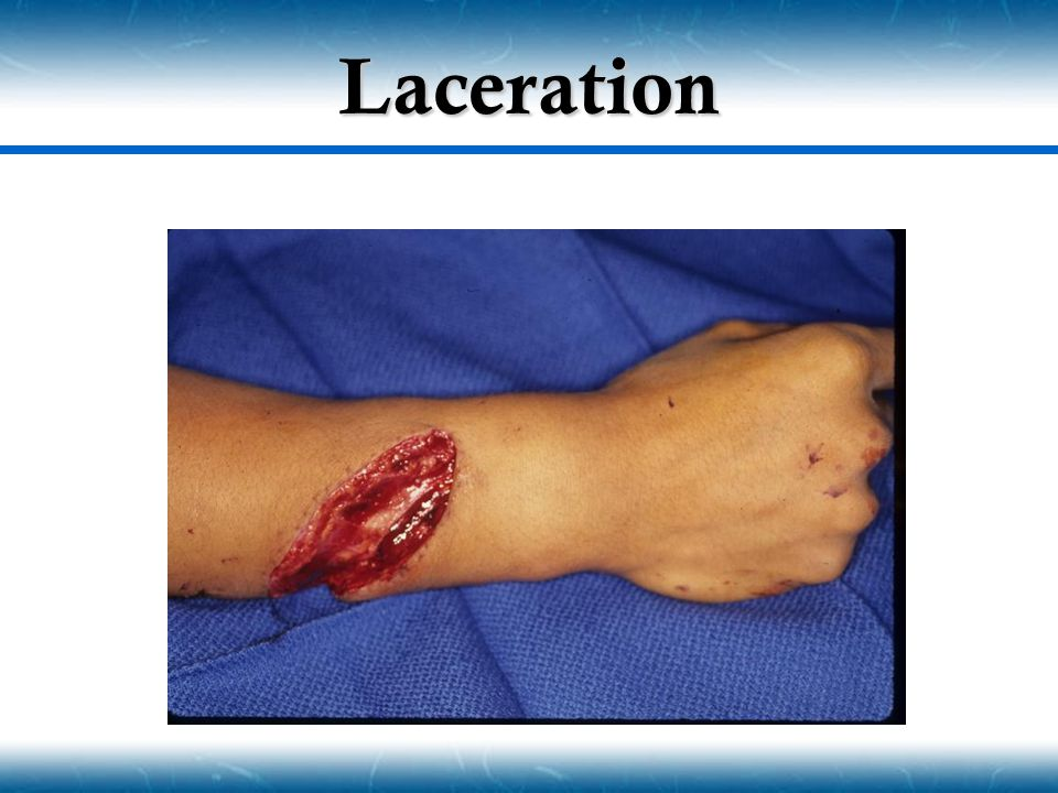 Laceration
