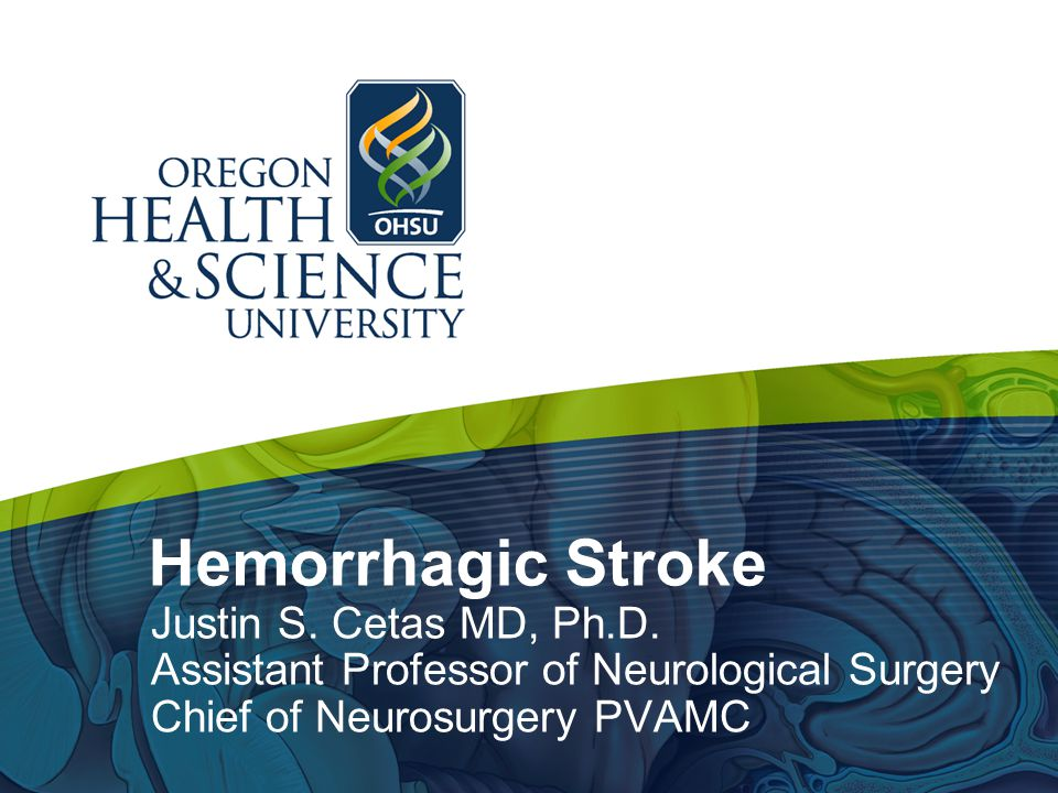 Hemorrhagic Stroke Justin S. Cetas MD, Ph.D.