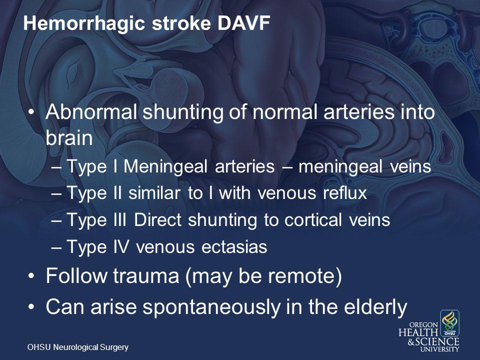 Hemorrhagic stroke DAVF