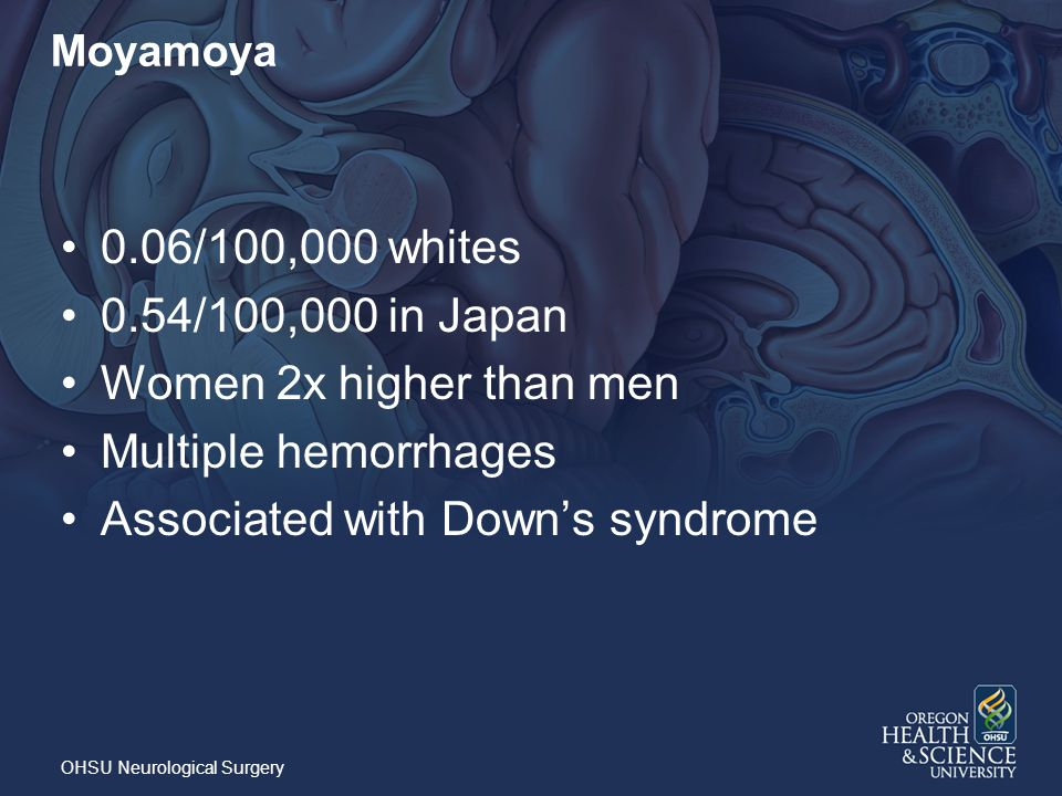 Associated with Down's syndrome