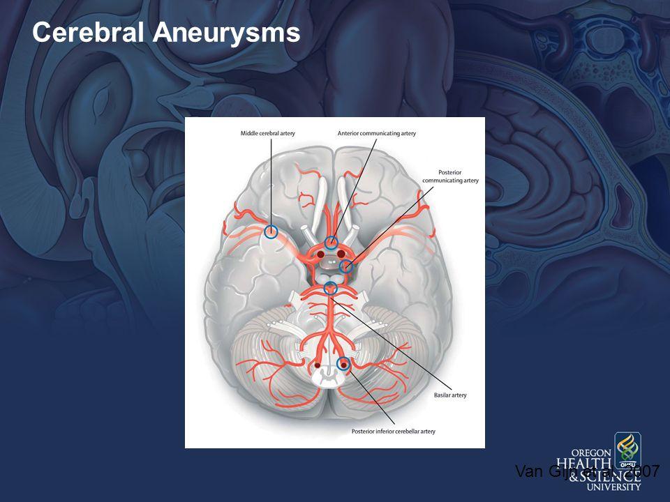 Cerebral Aneurysms Van Gijn et al. 2007